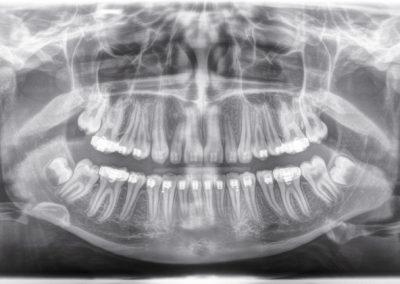 Digital X-Rays